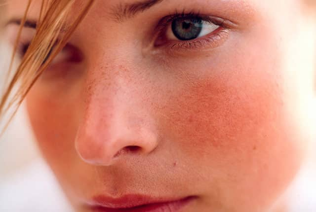 Rosacea | Skin Redness