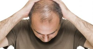 Mesotheraphy Hair Loss