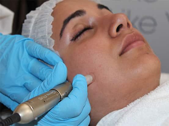 Skin Needling – DermaFNS